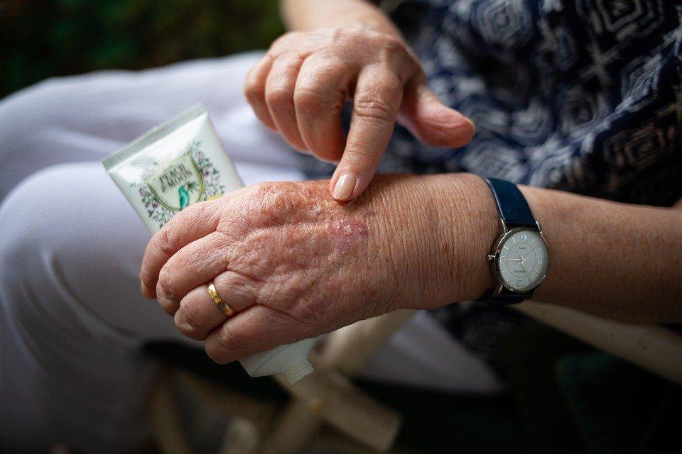 Natural arthritis pain relief
